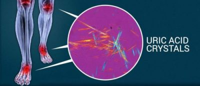 high uric acid crystals